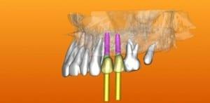 האם השתלות שיניים הינן טיפול מורכב או כואב? השתלות שיניים ביום אחד