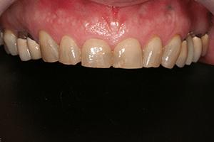ציפוי לשיניים