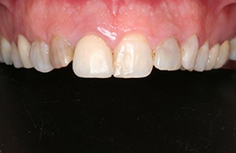 עוד מידע על ציפוי שיניים