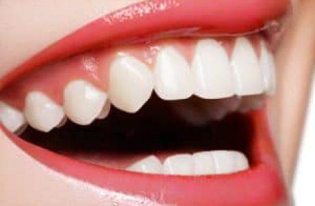 שיניים צחורות באמצעות CEREC