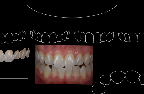 Digital Smile Design – שיטה חדשנית דיגיטלית לתכנון החיוך