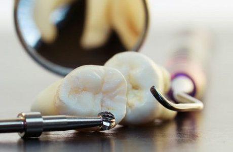 עקירת שיניים